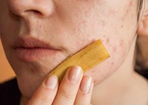 20-remedios-caseros-para-quitar-las-manchas-de-la-piel-10